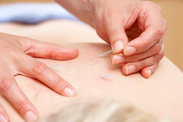 鍼治療はこんな症状に効果を発揮します!